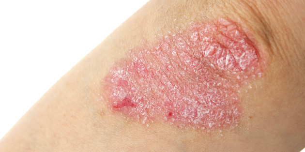 This type of psoriasis will require strict sun protection combined with other forms of treatment 2