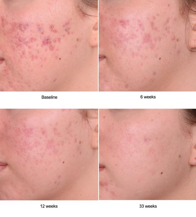 Kleresca® Acne Treatment